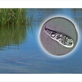 Naegleria fowleri amoeba_1667834364635007600