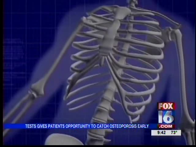 Living Well_ Osteoporosis_5228132541137833883