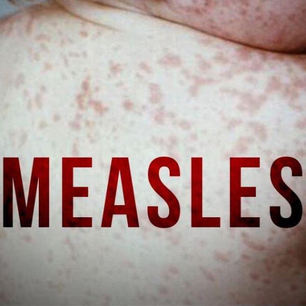 measles generic_1552501063506.JPG-118809306.jpg